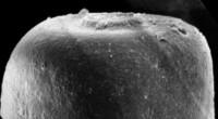 <i>Conochitina iklaensis Nestor, 1980</i><br />Ruhnu 500 borehole, 584.00 m, Raikküla Stage