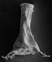 <i>Ancyrochitina ancyrea (Eisenack, 1931)</i><br />Ruhnu 500 borehole, 371.50 m, Jaagarahu Stage