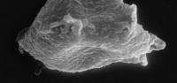 <i>Plectochitina cf. pachyderma Laufeld, 1974</i><br />Ruhnu 500 borehole, 359.25 m, Jaagarahu Stage