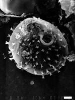 Axisphaeridium timofeevi Eisenack, 1967, GIT 344-13