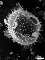 Axisphaeridium tricolumnelare Uutela, 1989, GIT 344-14