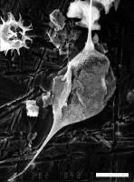 Leiofusa granulacutis f. quincunx Uutela, 1989, GIT 344-161