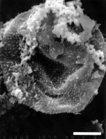 Lophosphaeridium pilosum Downie, 1963, GIT 344-169