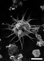 Micrhystridium equispinosum Turner, 1984, GIT 344-173