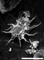 Micrhystridium stellatum salopiense Lister, 1970, GIT 344-191