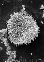 Multiplicisphaeridium parvispinosum Uutela et Tynni, 1991, GIT 344-218