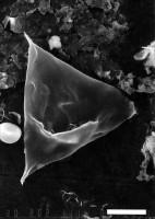 Veryhachium brevitrispinum Staplin, 1961, GIT 344-272