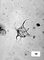 Veryhachium cymosum Wicander et Loeblich, 1977, GIT 344-273