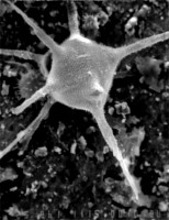 Orthosphaeridium insculptum f. erectum n. forma, GIT 344-276