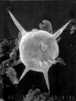 Baltisphaeridium esthonicum Uutela et Tynni, 1991, GIT 344-31