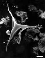 Veryhachium geometricum (Deflandre), Deunff, 1954, GIT 344-310