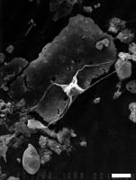 Veryhachium longispinosum  Jardine, Combaz, Peniguel et Vachey, 1974, GIT 344-313