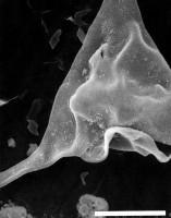 Veryhachium trispinosum granulatum Tynni, 1982, emend., GIT 344-320