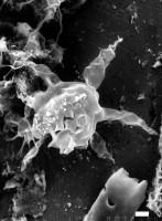 Baltisphaeridium latiradiatum (Eisenack) Staplin, Jansonius et Pocock, 1965, GIT 344-44