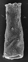 <i>Belonechitina postrobusta (Nestor, 1980)</i><br />Aispute 41 borehole, 977.95 m, lower Silurian
