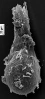 <i>Ramochitina sp.</i><br />Staicele 4 borehole, 296.00 m, Adavere Stage