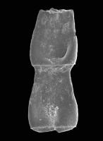 <i>Cingulochitina gorstyensis Sutherland, 1974</i><br />Pavilosta 51 borehole, 796.00 m, Gorstian