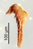 <i>Oenonites sp.</i><br />Qusaiba 1 borehole, 484.70 m, Upper Ordovician (GIT 641-16)