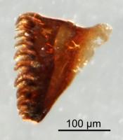 <i>Oenonites sp.</i><br />Qusaiba 1 borehole, 484.70 m, Upper Ordovician (GIT 641-25)