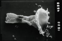<i>Ancyrochitina aff. ansarviensis</i><br />Viki borehole, 148.45 m, Adavere Stage