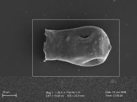 <i>Linochitina sp.</i><br />Pavilosta 51 borehole, 736.00 m,