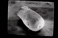 <i>Eisenackitina aff. dolioliformis</i><br />Tõlla borehole, 126.10 m, Jaani Stage