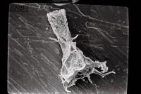 <i>Ancyrochitina sp. sp.</i><br />Ruhnu 500 borehole, 361.90 m, Jaagarahu Stage