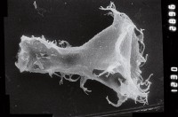 <i>Ancyrochitina sp. C</i><br />Ruhnu 500 borehole, 359.25 m, Jaagarahu Stage