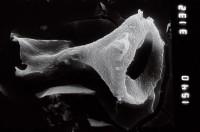 <i>Plectochitina cf. pachyderma</i><br />Ruhnu 500 borehole, 359.25 m, Jaagarahu Stage