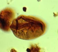 Lophosphaeridium sp., TUG 1520-1