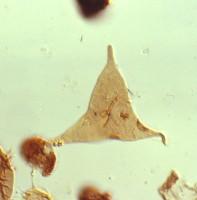 Veryhachium dumontii Vanguestaine, 1974, TUG 1520-24