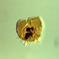 Stelliferidium cortinulum (Deunff,1961) Deuff, Gorka & Rauscher 1974, TUG 1520-6