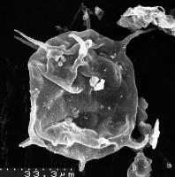 Acanthodiacrodium tremadocum Gorka, 1967, TUG 1536-21