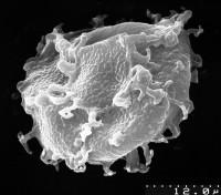 Cymatiogalea cristata (Downie 1958) Rauscher 1973, TUG 1537-26