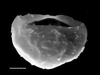 Caldariola glabra (Martin, 1972) Molyneux 1988, TUG 1545-11